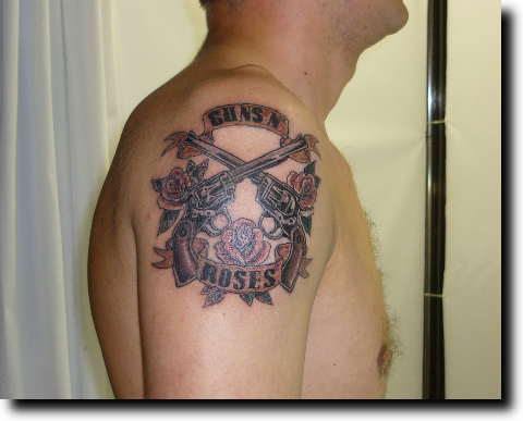 tattoo removal without scar: Best Tattoo Removal San Antonio